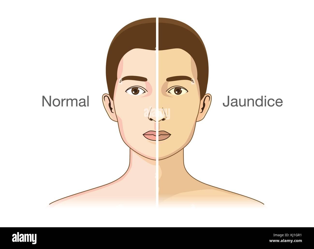 The Comparison between normal skin people - Stock Vector