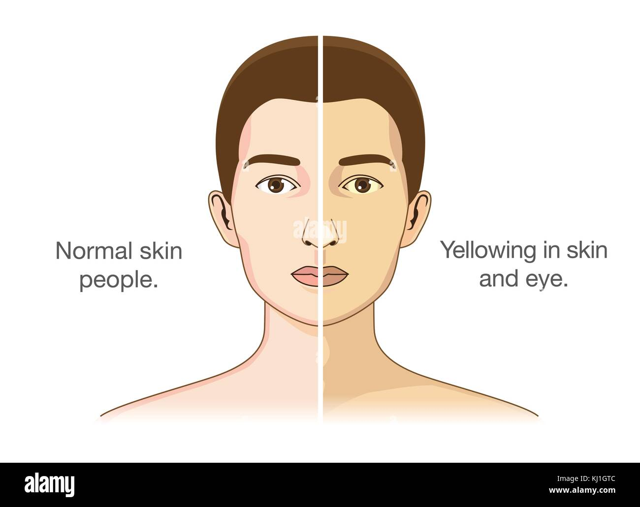 Normal people and yellowing of the eyes and skin. - Stock Vector