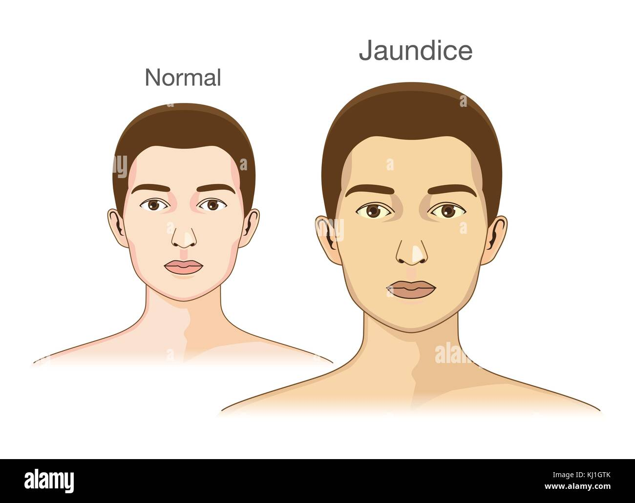 The Comparison between normal skin people and yellowing from Jaundice. - Stock Vector