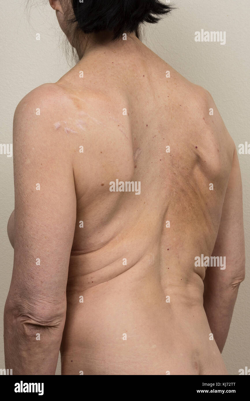 The back of a mature woman with scoliosis - Stock Image