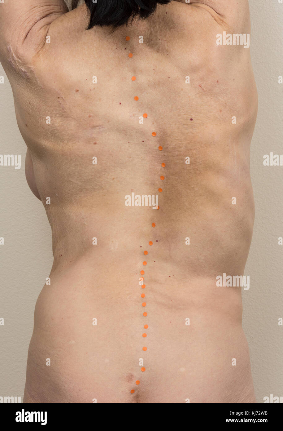 The back of a mature woman with scoliosis with dots showing spine location. - Stock Image