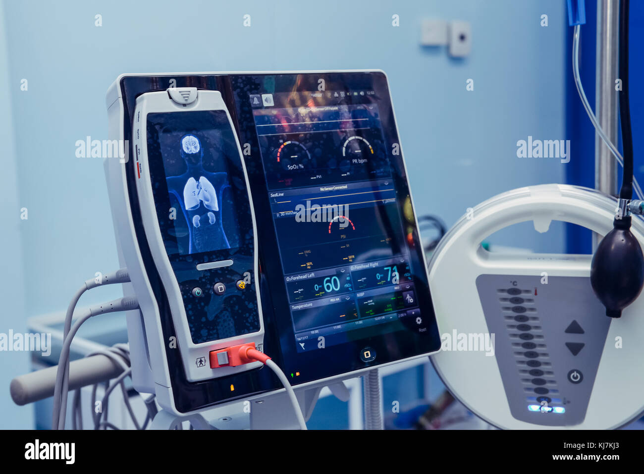 Medicine, health care, emergency and medical equipment concept - extracorporeal life support machine at operating Stock Photo