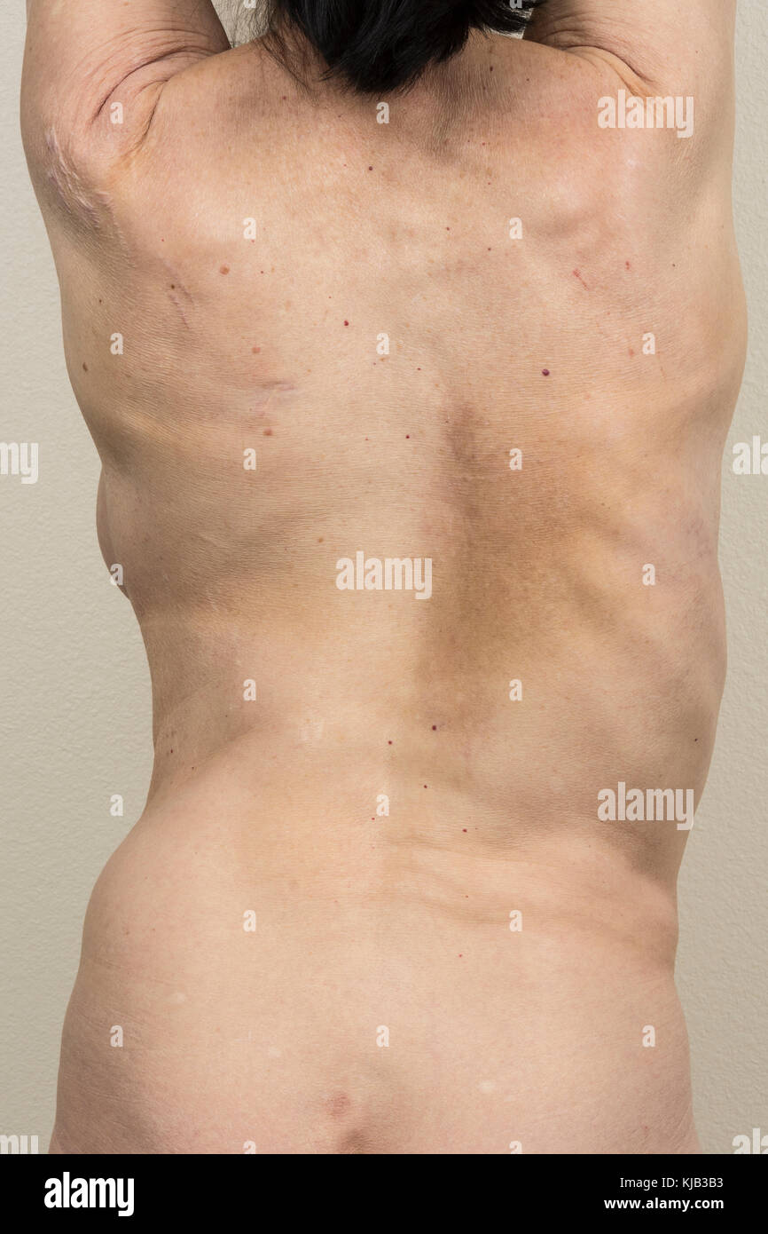The back of a mature woman with scoliosis from the left side. - Stock Image