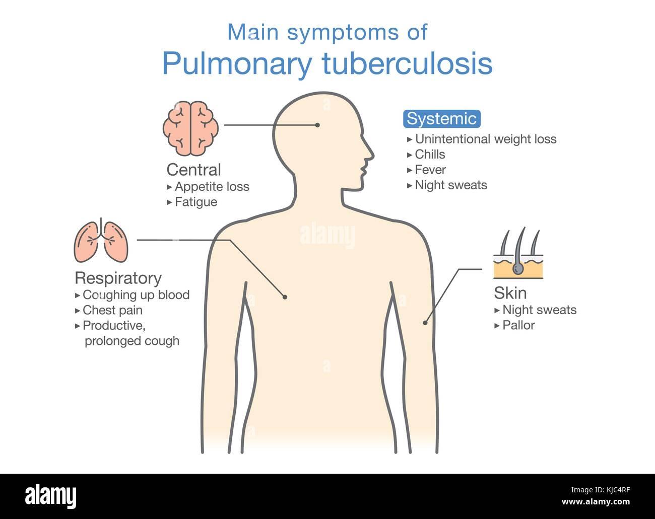 Main symptoms of Pulmonary Tuberculosis patient. - Stock Image