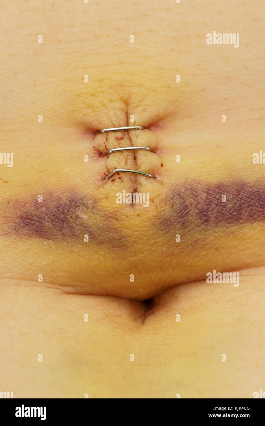 Metal staples in a scar with bruise and belly button - Stock Image