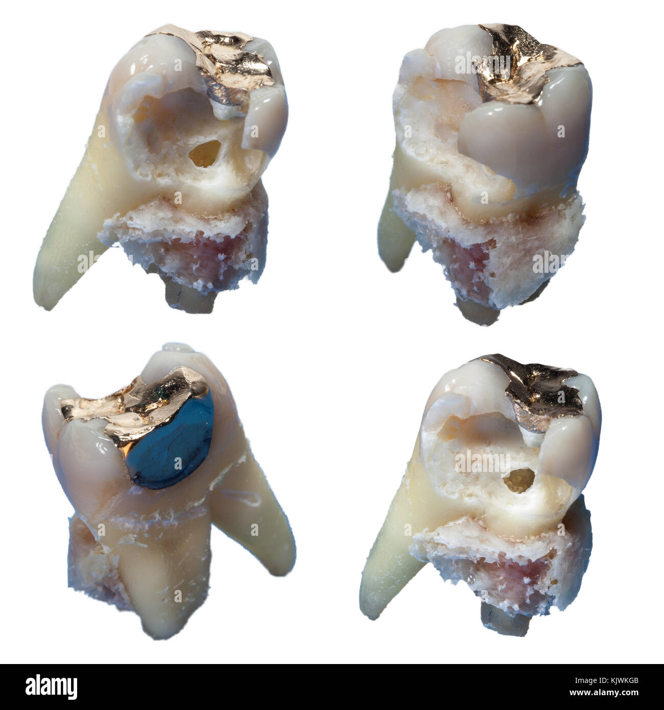 Pulled carious tooth - Stock Image