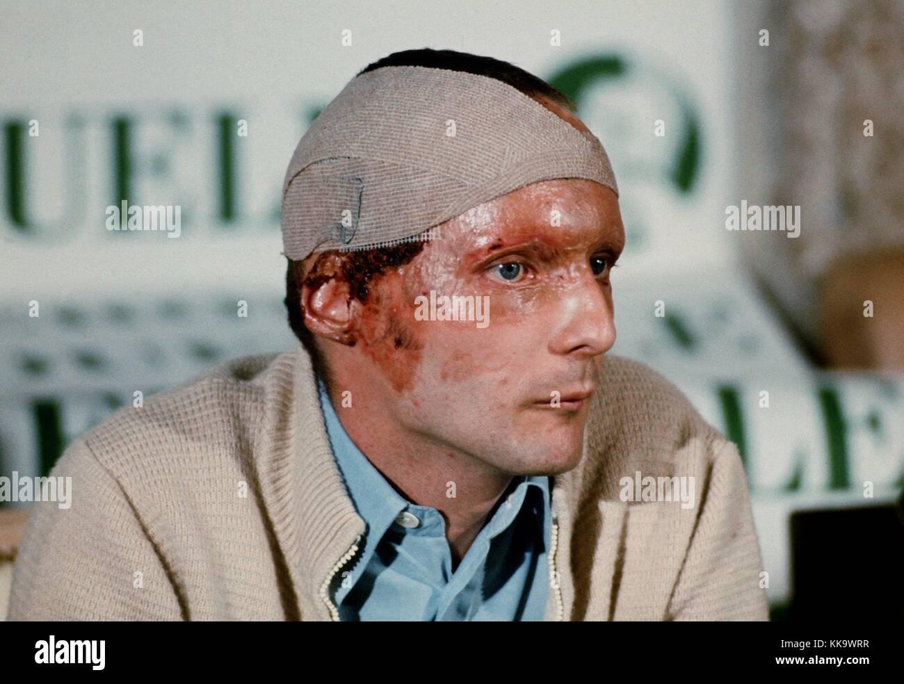 Niki Lauda Verbrennung