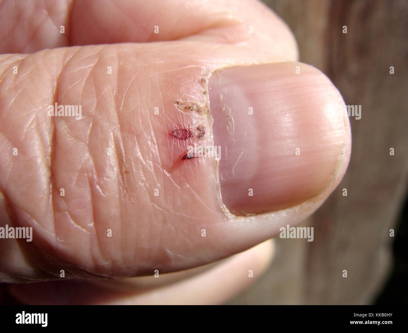 Cracked torn pieces of skin on big finger named hangnails or agnails ...