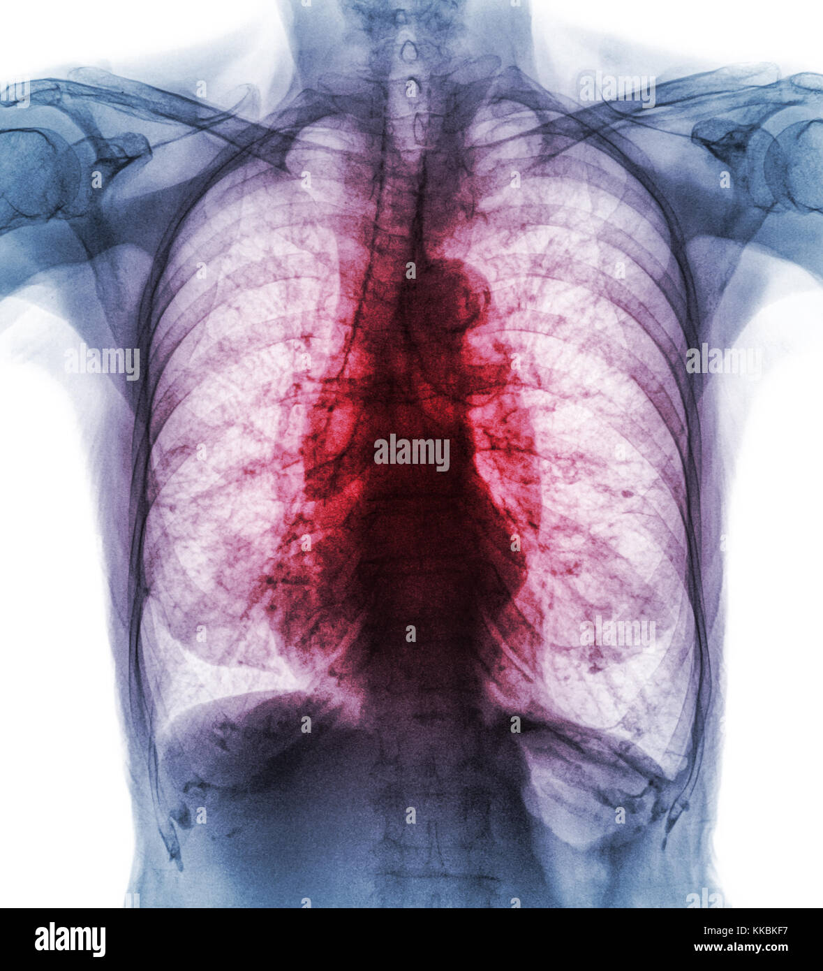 Pulmonary Tuberculosis . Film chest x-ray show interstitial infiltrate both lung due to Mycobacterium tuberculosis - Stock Image