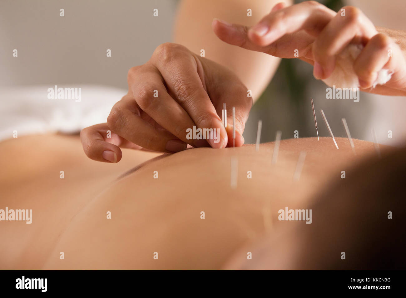 The doctor sticks needles into the girl's body on the acupuncture - close up Stock Photo