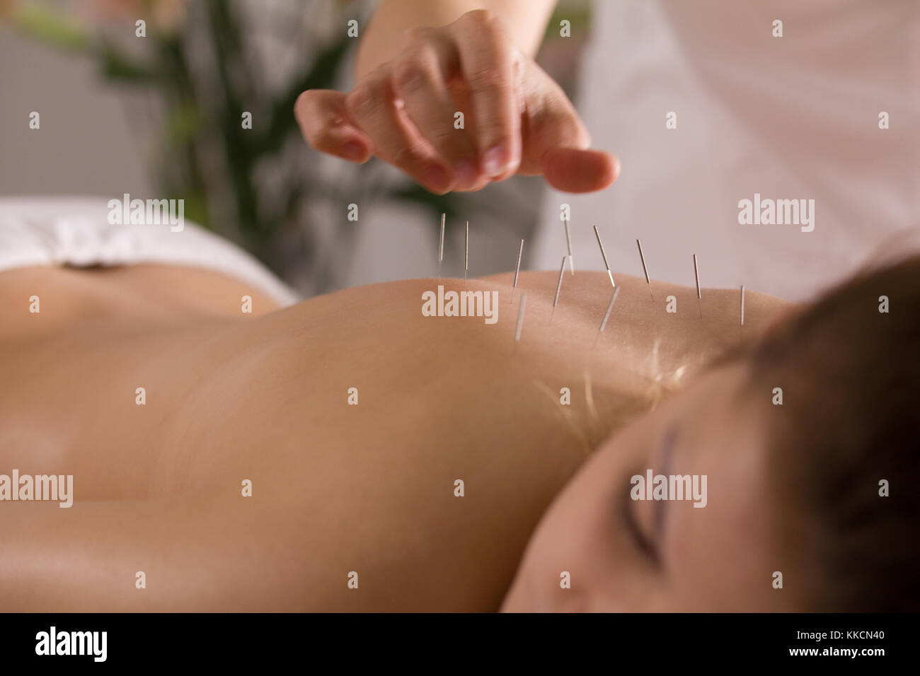 The doctor sticks needles into the girl's body on the acupuncture - Stock Image