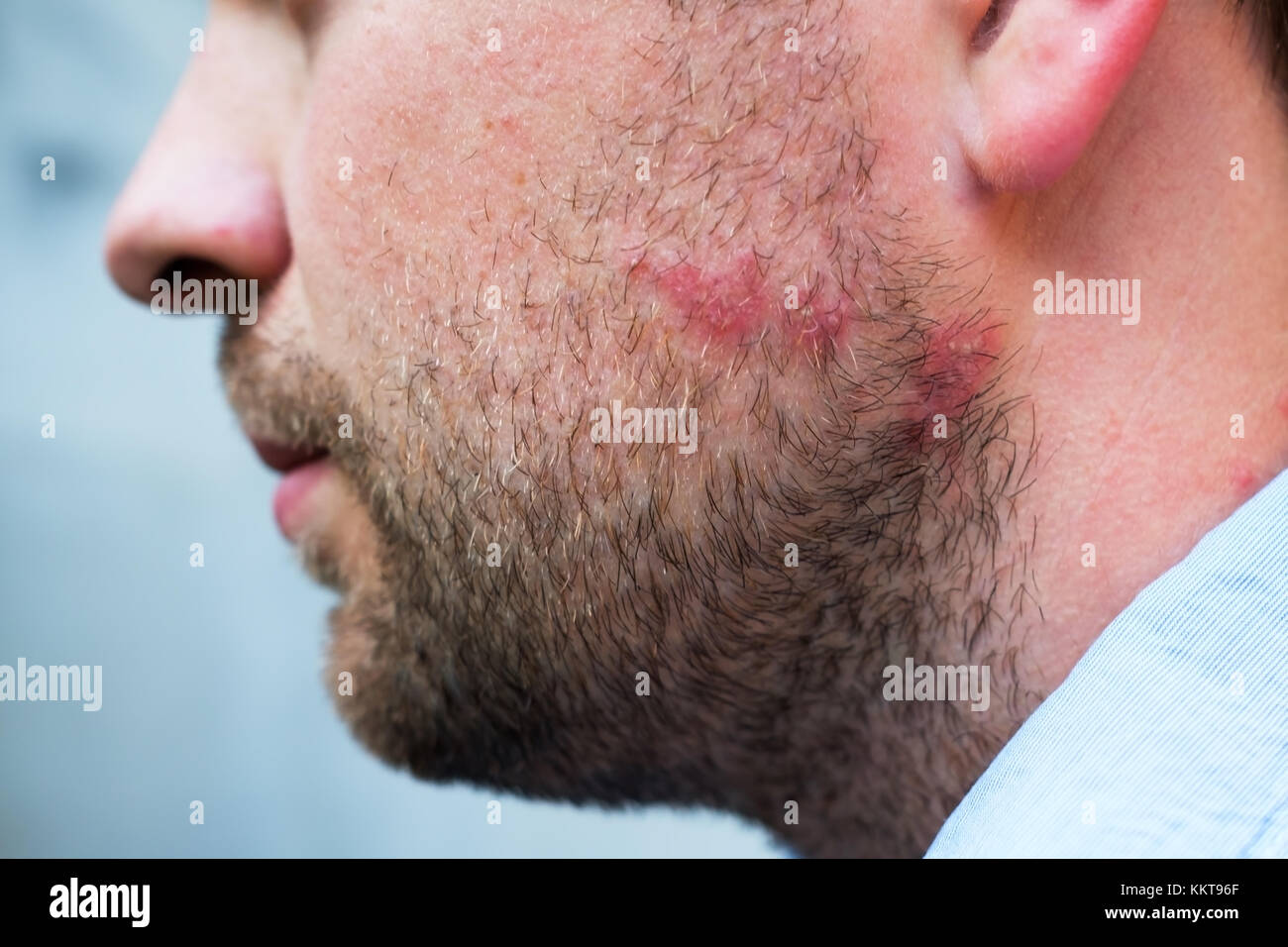 Rash reaction from drug or food allergy on face of caucasian man - Stock Image