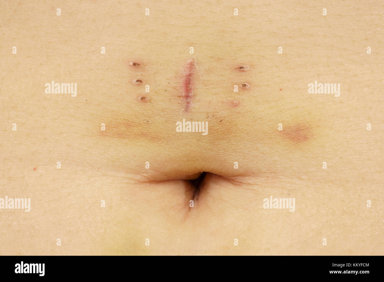 Scar with bruise and belly button closeup after hysterectomy - Stock Image