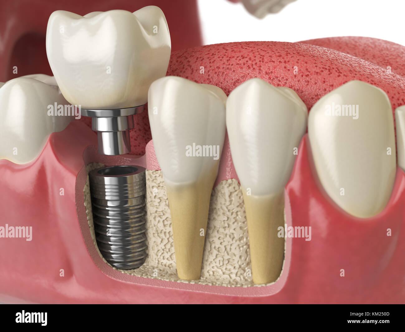 Anatomy of healthy teeth and tooth dental implant in human dentura ...