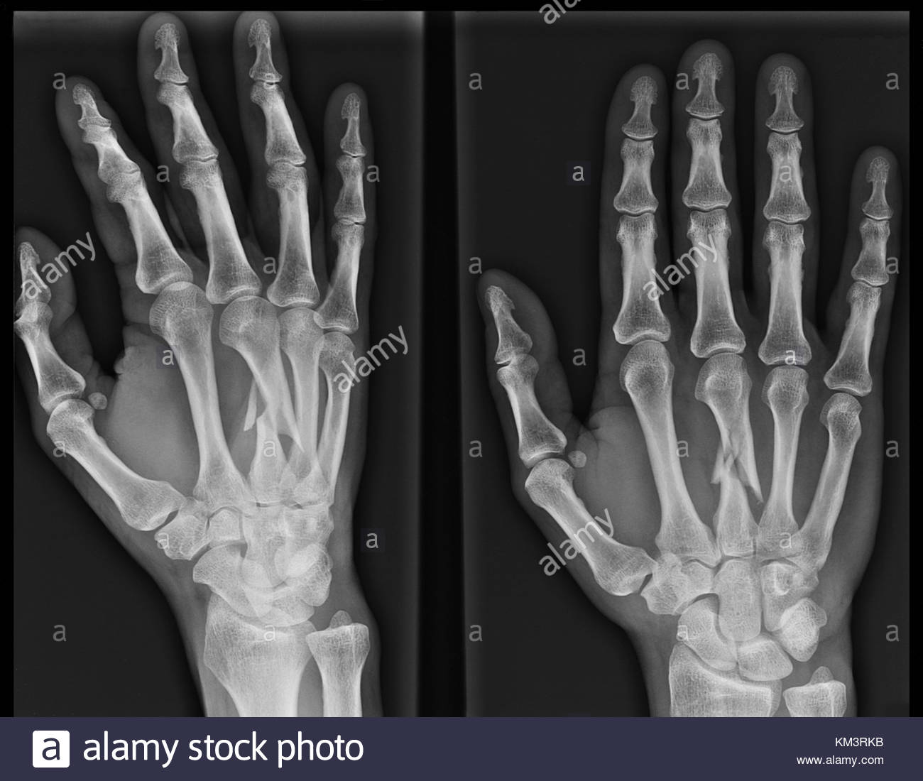 X Ray Image Of The Broken Third Metacarpal Bone In The Hand Stock