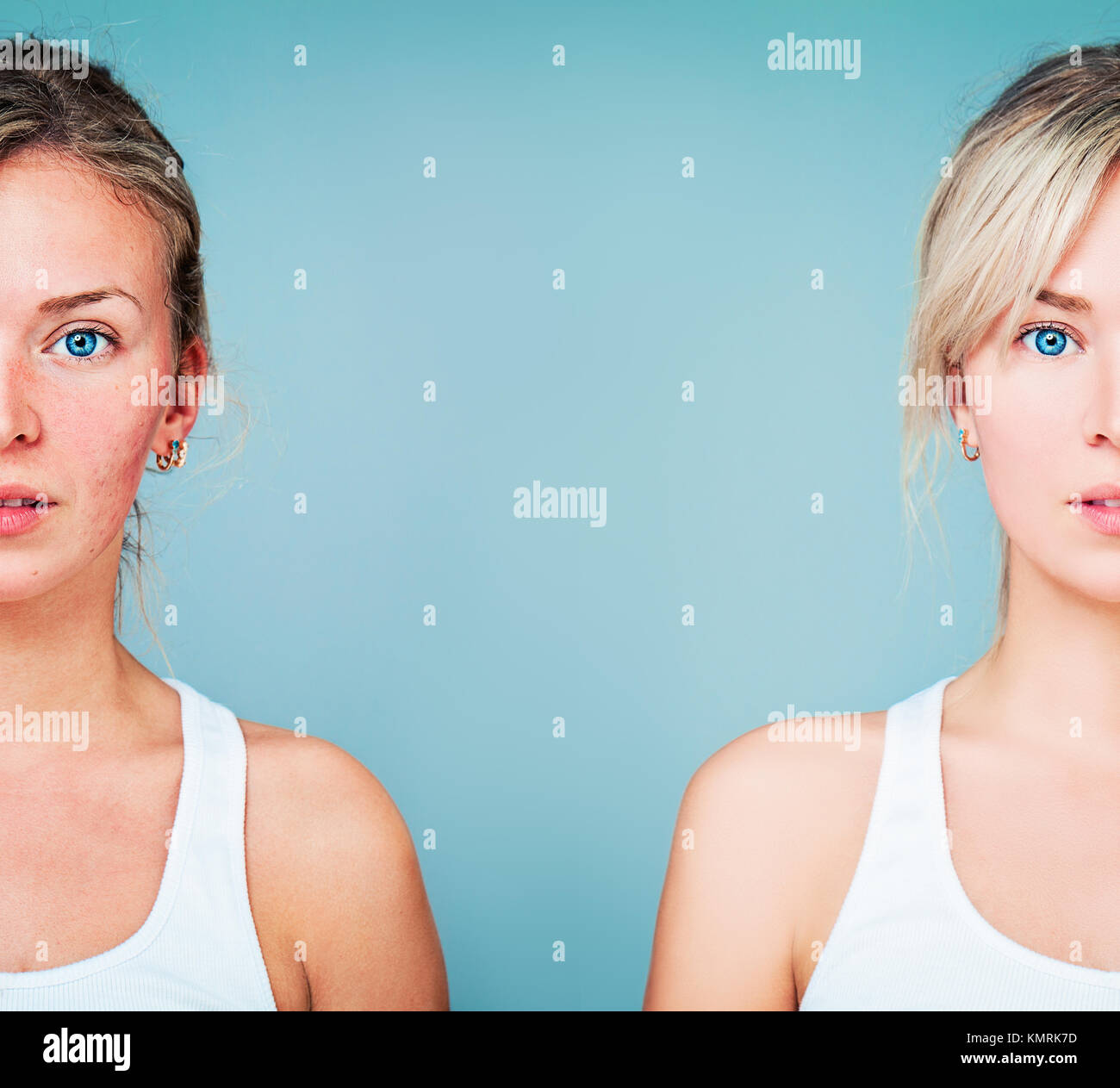 Young Woman with Perfect Skin and Skin Problem. Unhealthy and Healthy Skin After Treatment. Facial Treatment, Medicine Stock Photo