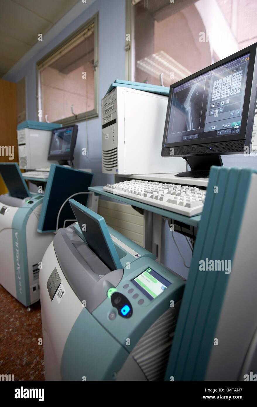 X-Ray image reading, FCR CAPSULA, Fuji Computed Radiography, Hospital de Zumarraga, Gipuzkoa, Euskadi Stock Photo