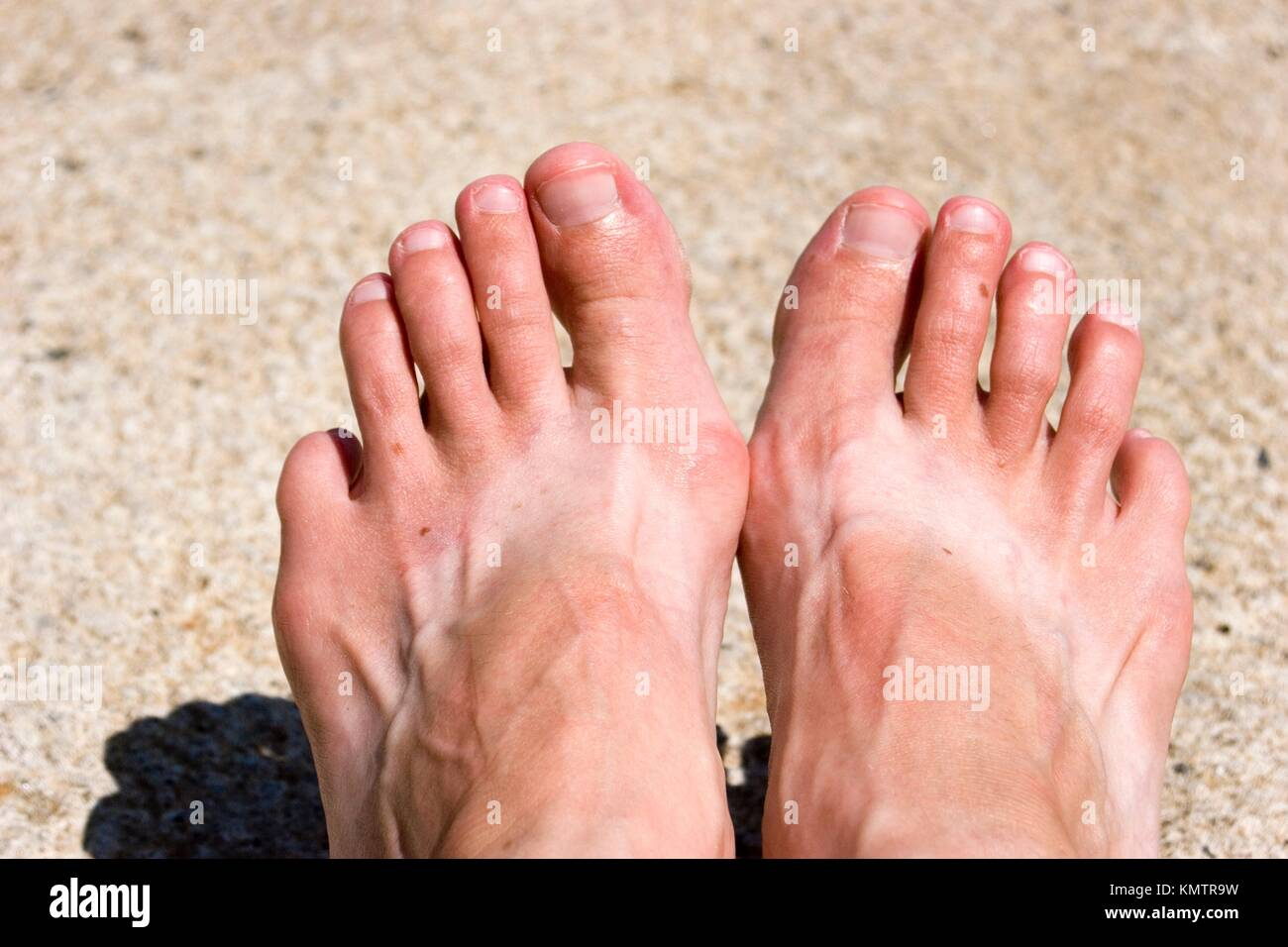 b35686e06edc9 Tan lines after wearing flip flops an entire summer Stock Photo ...