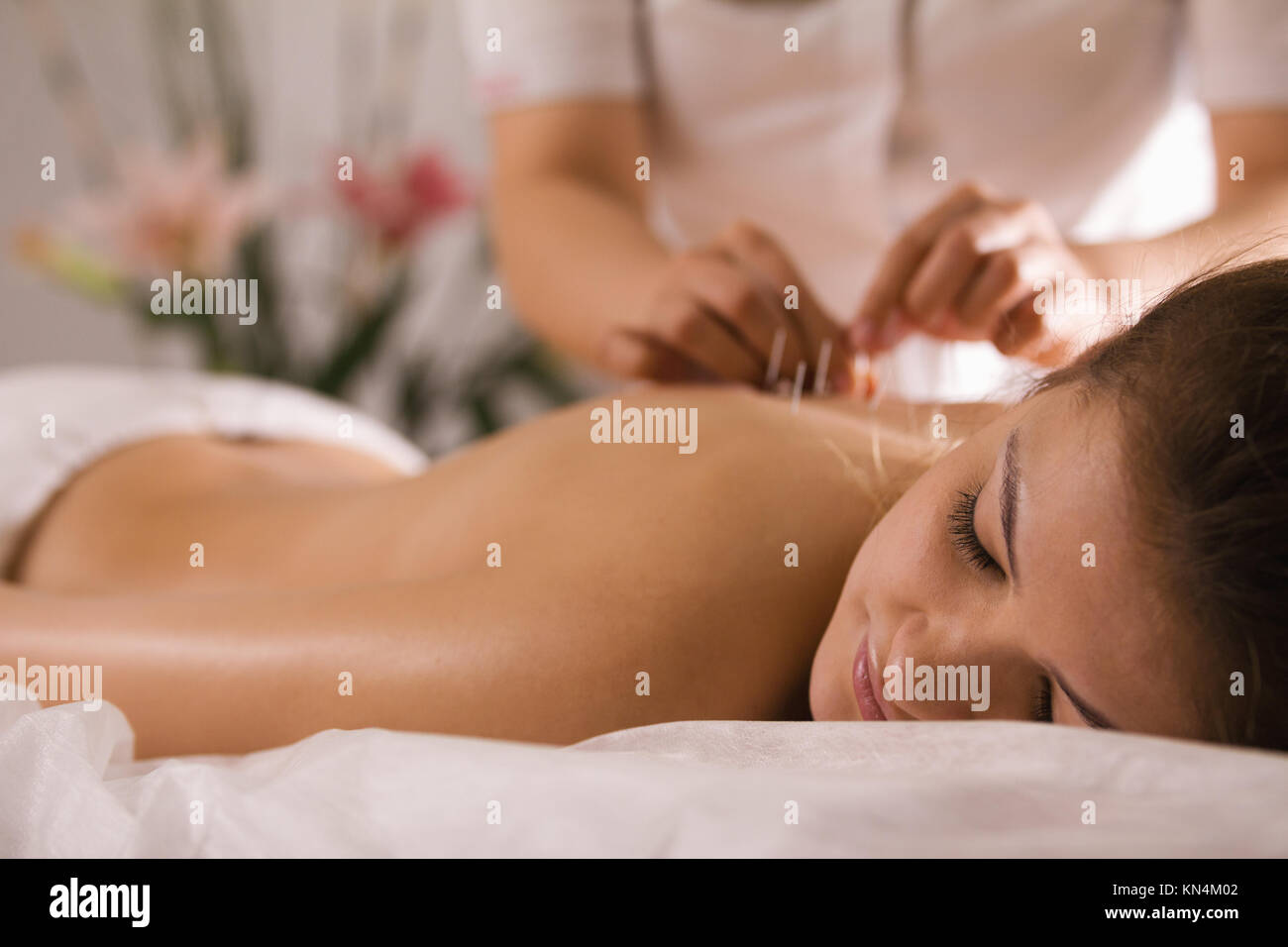 The doctor sticks needles into the woman's body on the acupuncture - close up - Stock Image