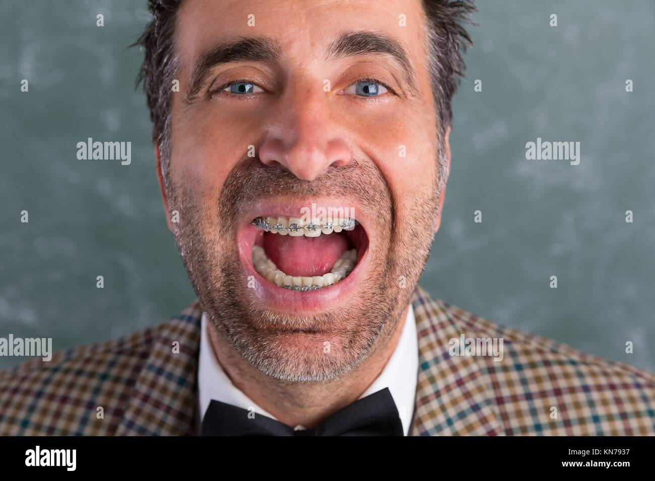 Nerd silly retro man with braces funny expression open mouth. - Stock Image
