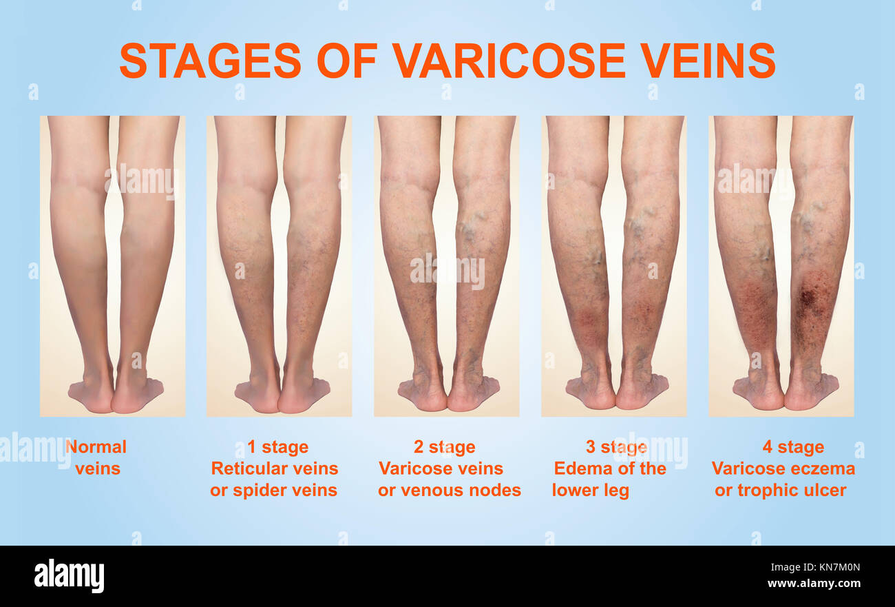 Venous Leg Stock Photos & Venous Leg Stock Images - Alamy