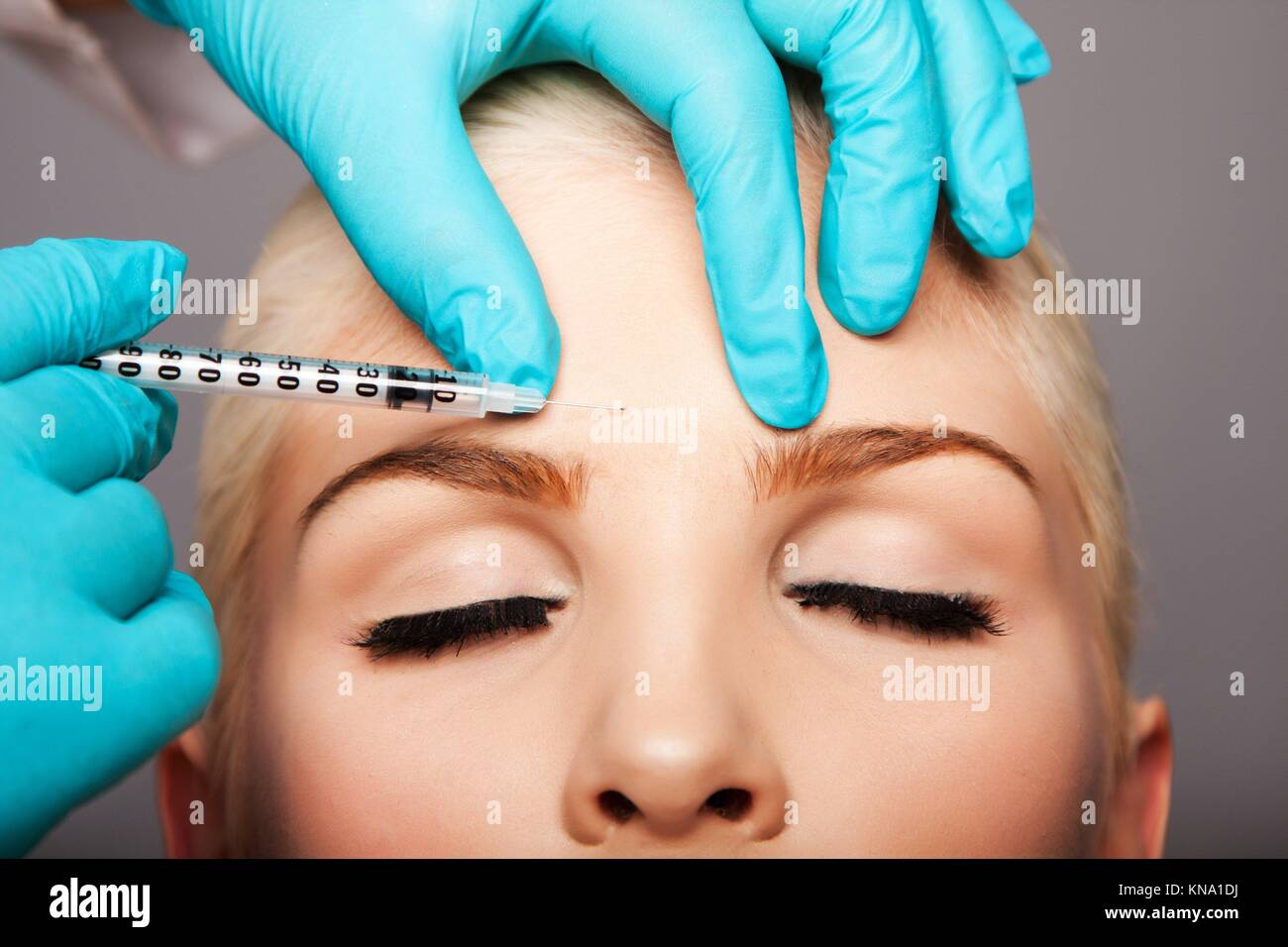 Beautiful face of young woman for Aesthetics facial skincare concept anti-wrinkle forehead botox restylane injection - Stock Image