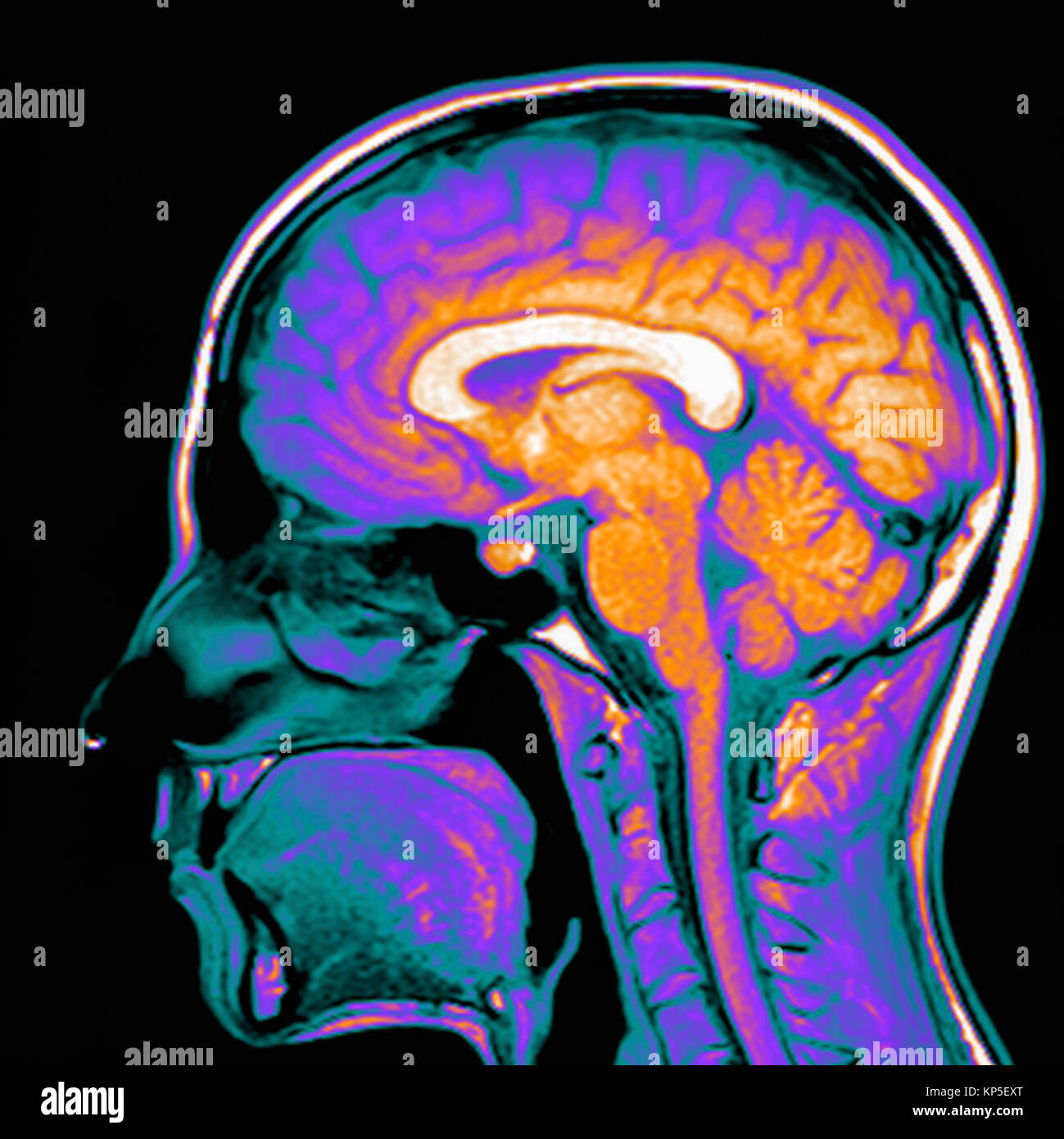 Coloured magnetic resonance imaging (MRI) scan of a sagittal section through a patient's head showing a healthy - Stock Image