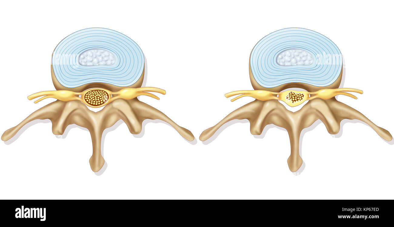 SPINAL STENOSIS Stock Photo