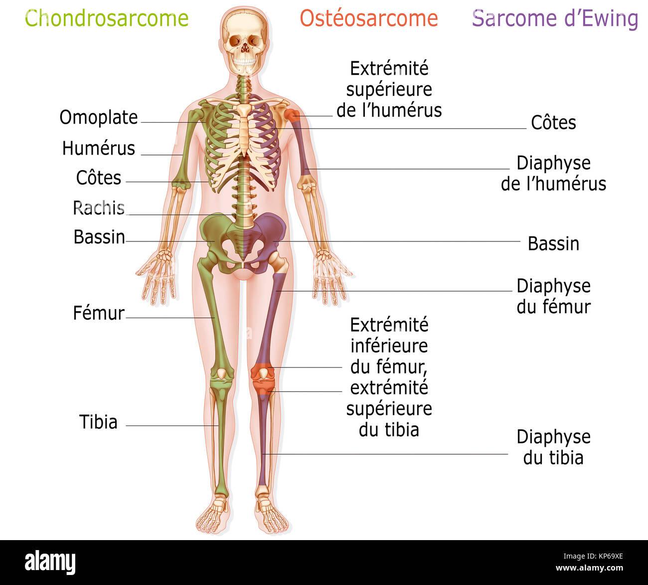 BONE CANCER ILLUSTRATION - Stock Image