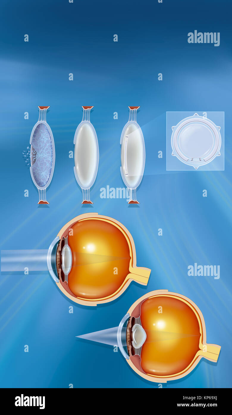 LENS IMPLANT - Stock Image