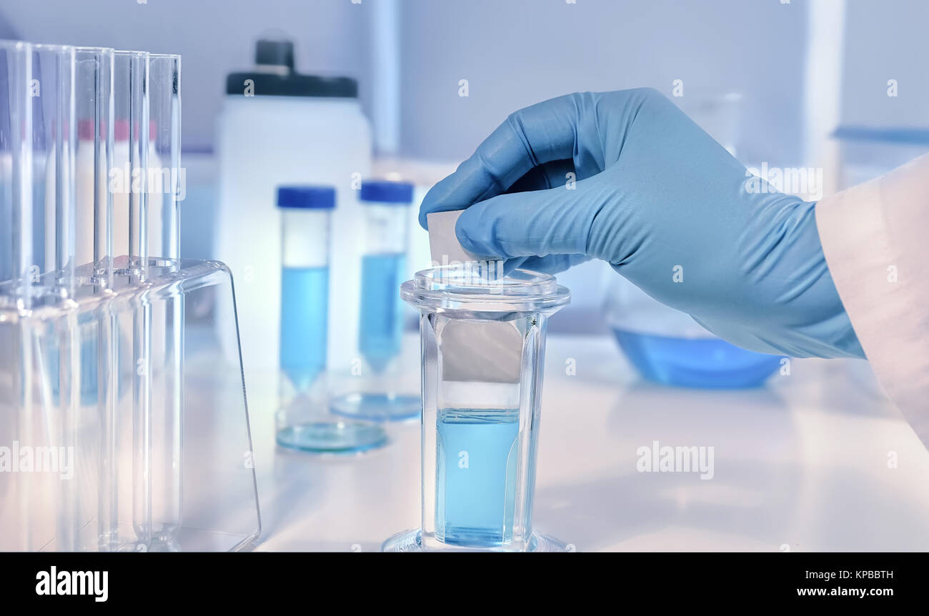 Scientific or medical background. Cancer diagnosis: Histopathology, cytology and analysis of tumour markers. Histochemical Stock Photo