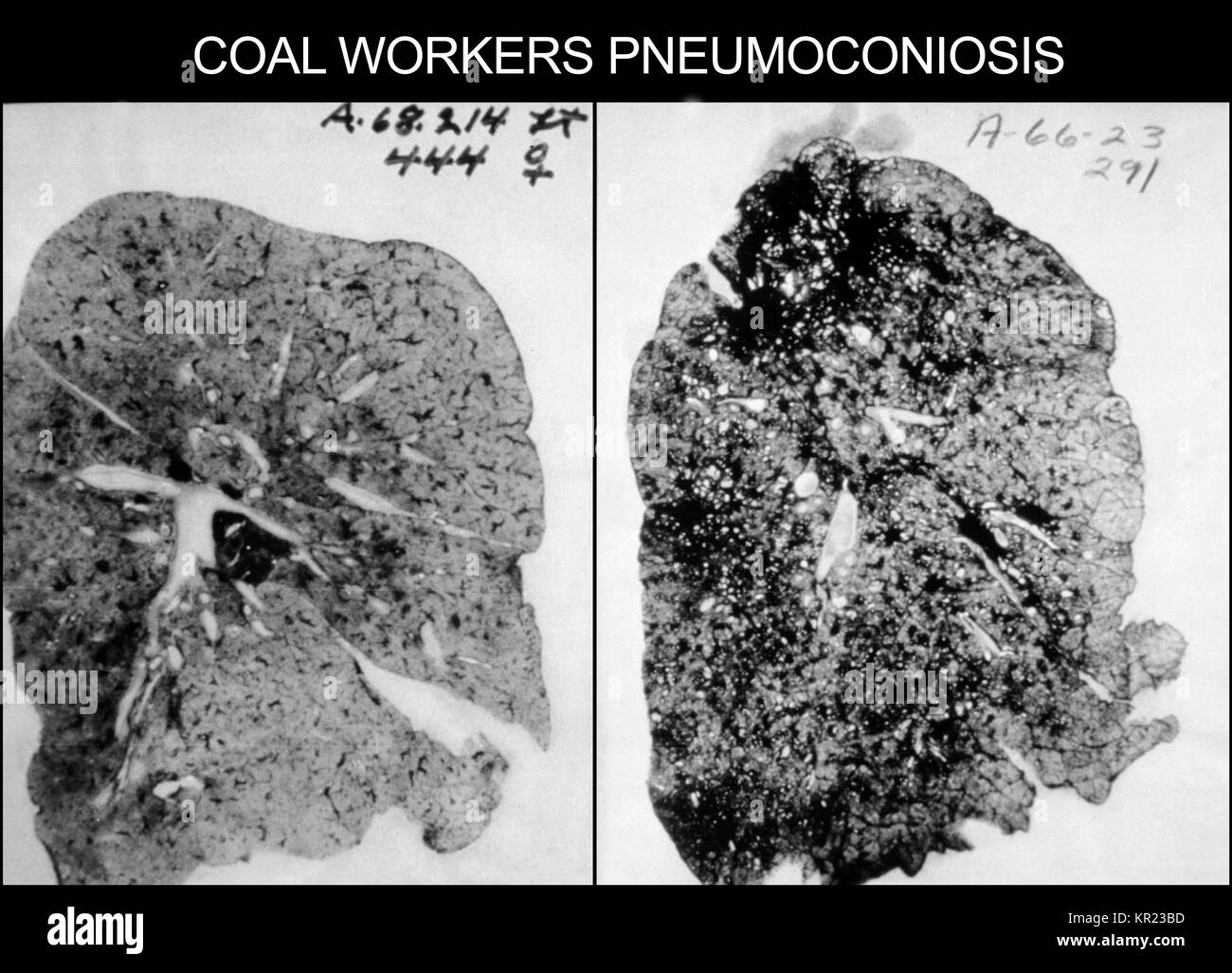 Coal Dust Black And White Stock Photos Amp Images Alamy