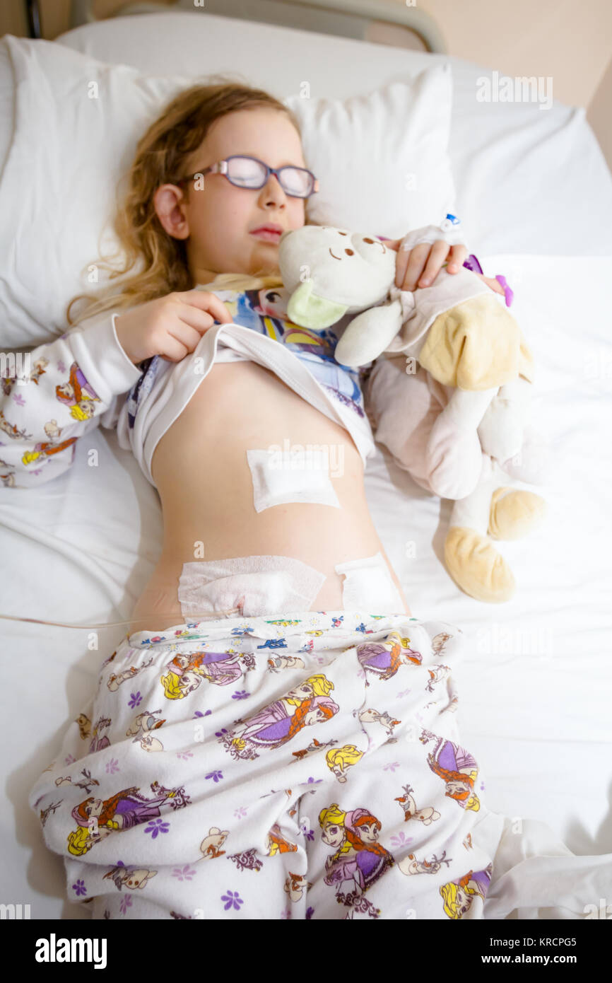 Little girl has medical patch on her belly and catheter tube after surgical operation of appendix. - Stock Image