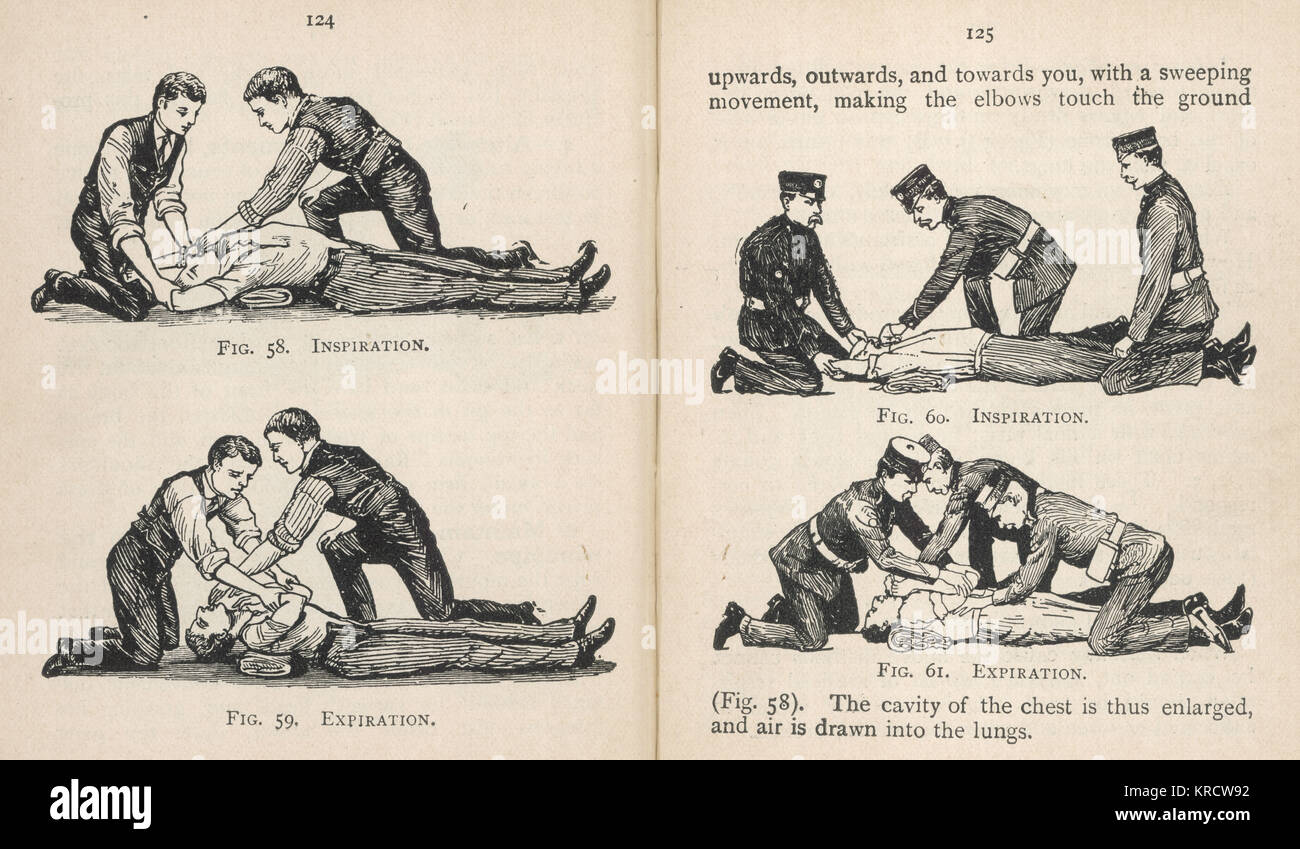First aid, artificial respiration -- Dr Silvester's Method, with two stages of inspiration and expiration. Date: - Stock Image