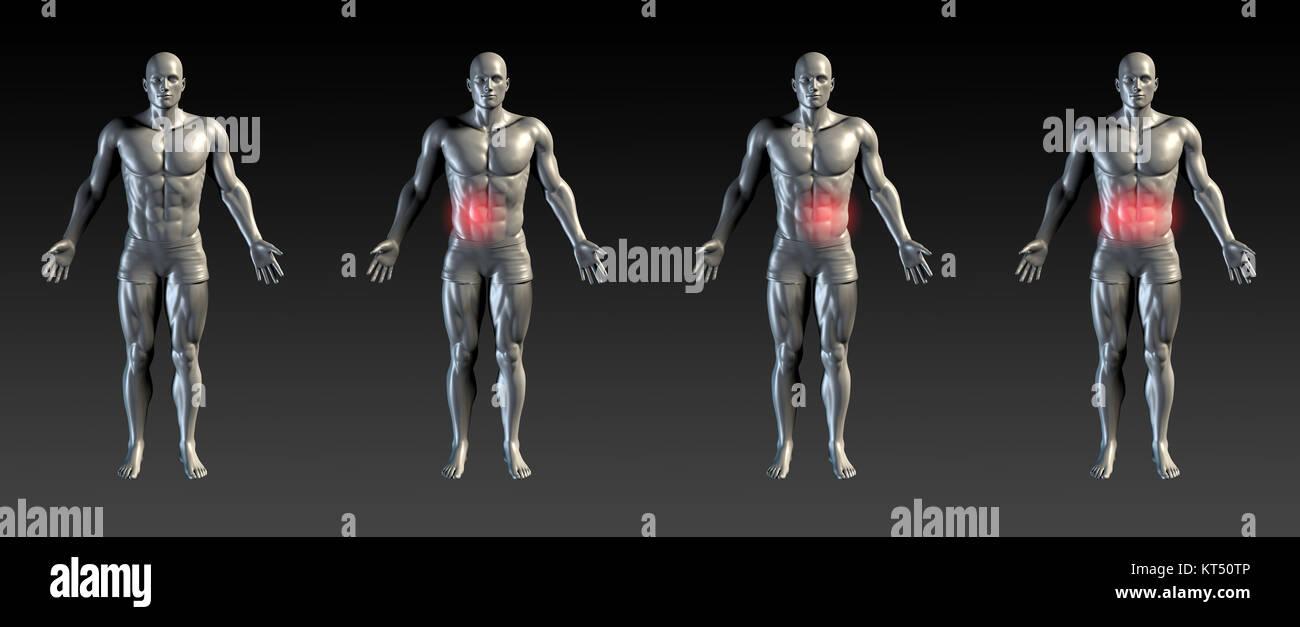 Abdominal Injury - Stock Image