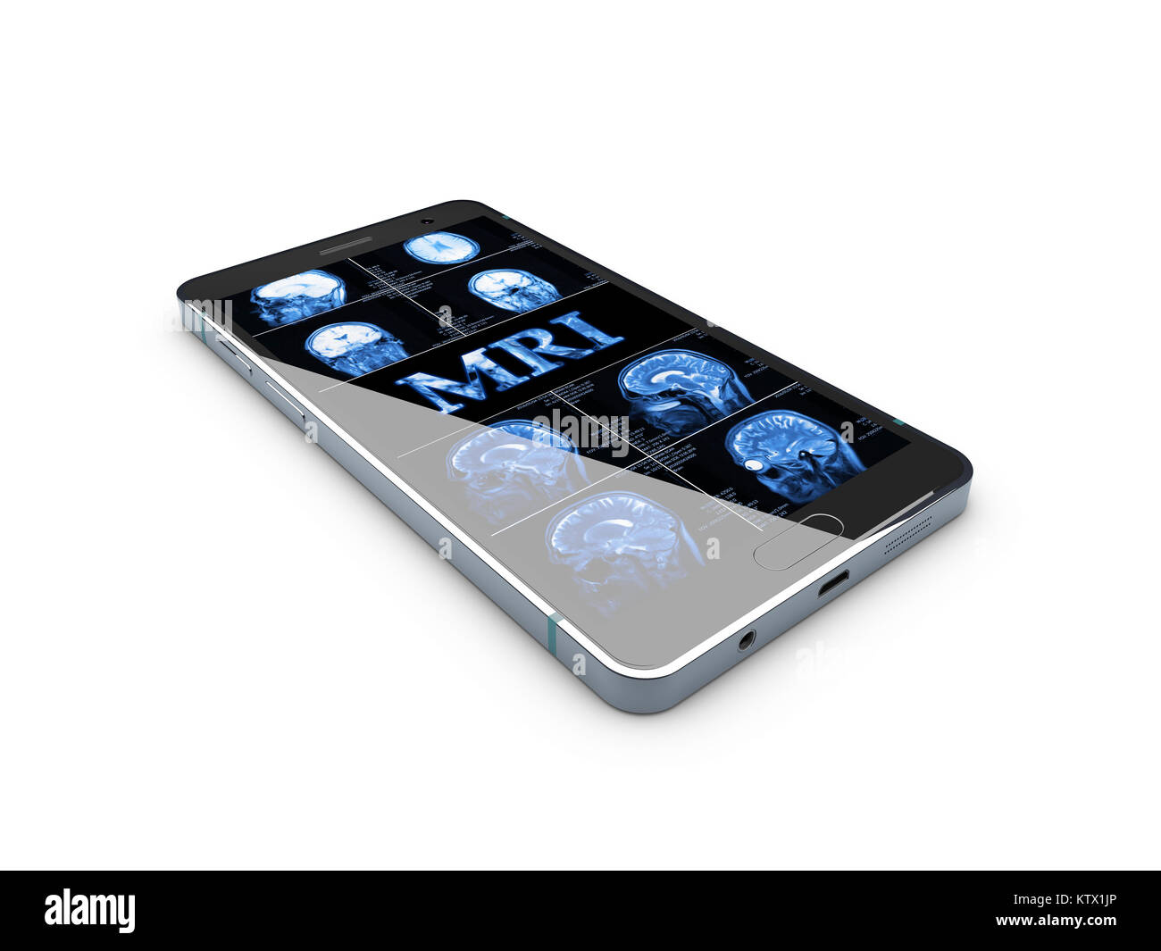 Medicine concept: Smartphone with blue text MRI and X-ray of the skull on display, 3D Illustration. - Stock Image