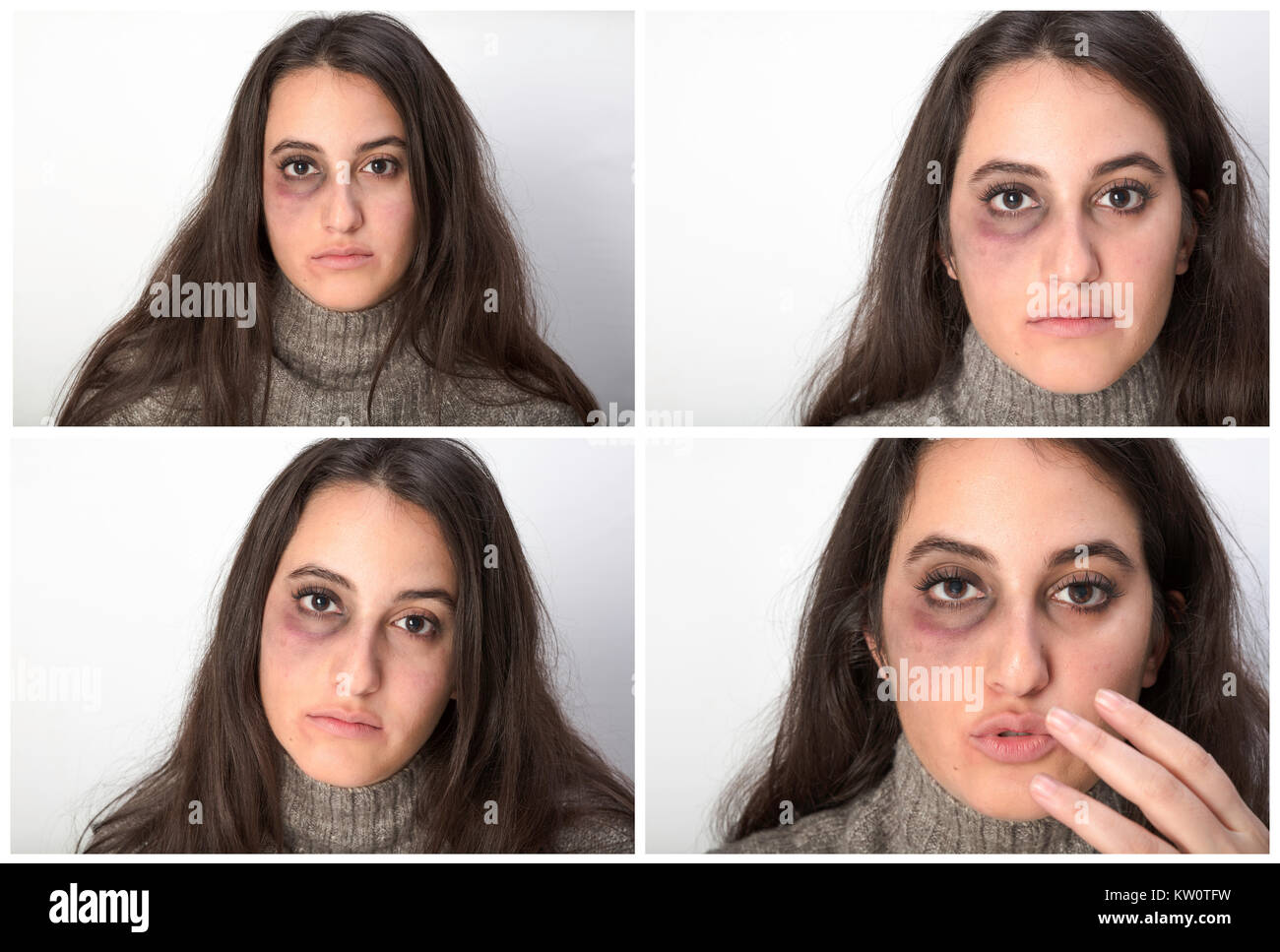 Four portraits of an abused woman with a black bruised eye looking at the camera with a serious sad expression in - Stock Image