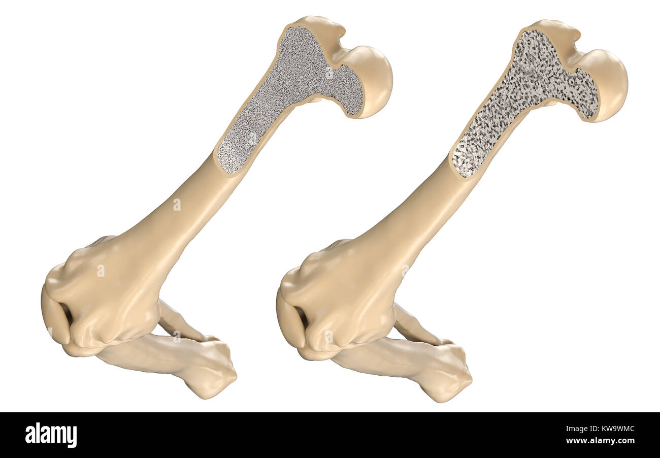 Human Thigh Bone Normal And With Osteoporosis 3d Illustration
