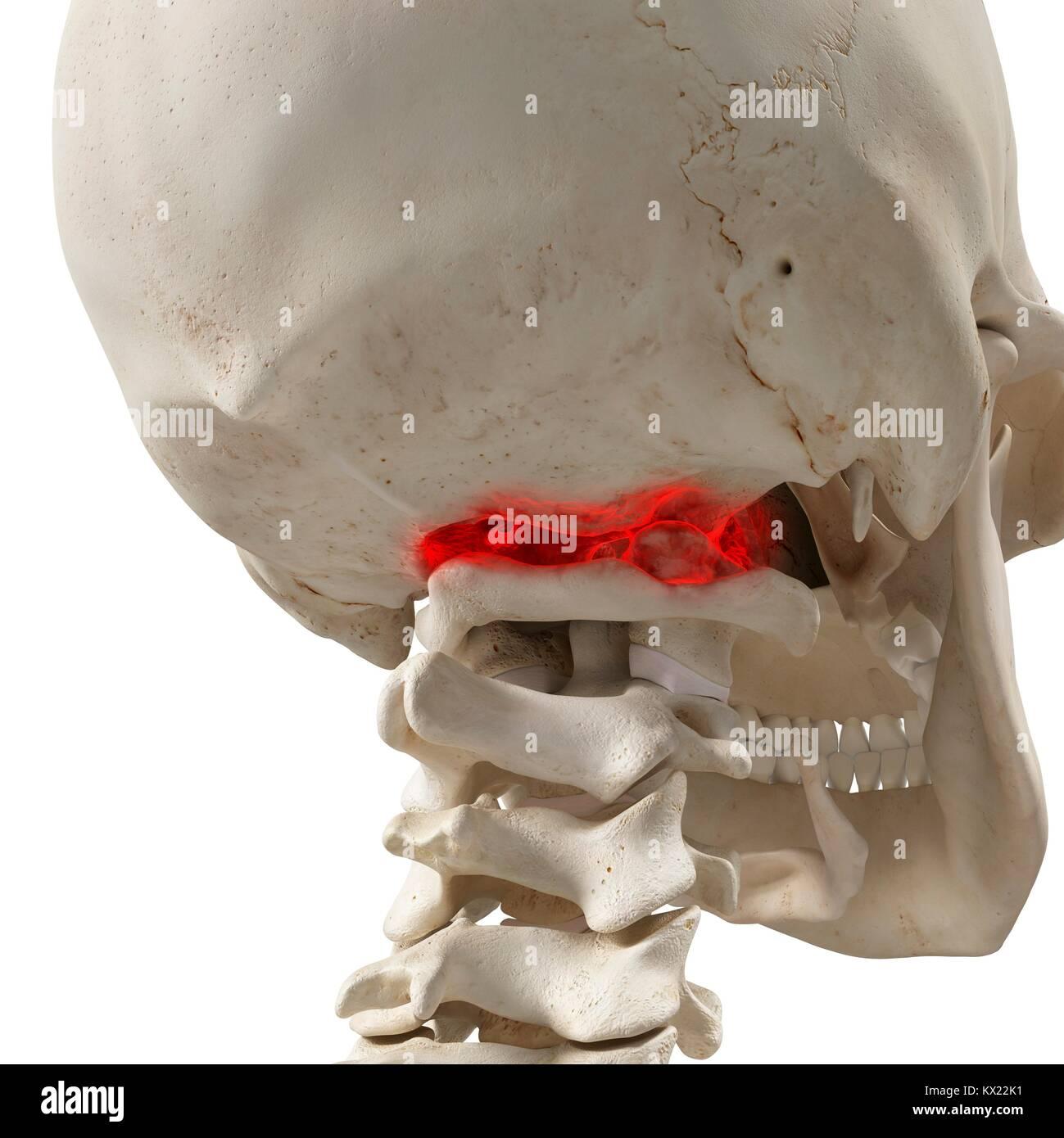 Arthritis in the atlas vertebrae, illustration. - Stock Image