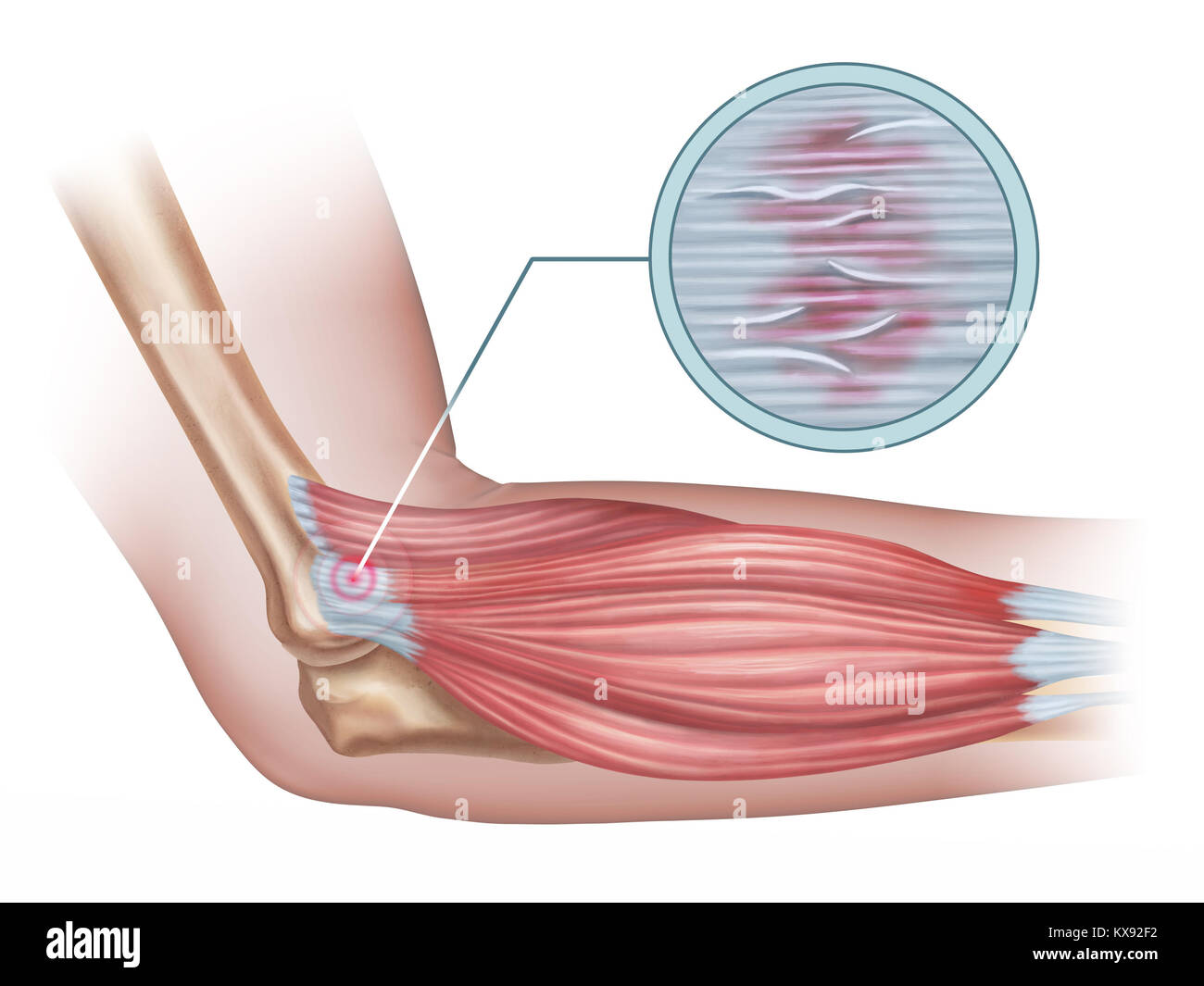Tennis elbow diagram showing a detail of the damaged tendon tissue ...