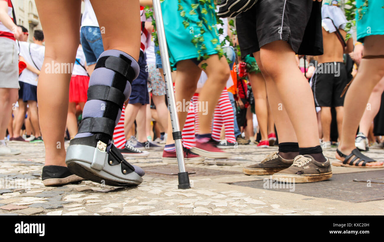 Woman is with her leg immobilized. Orthopedic leg brace. Courageous and determined to have fun. . Camera low angle, - Stock Image