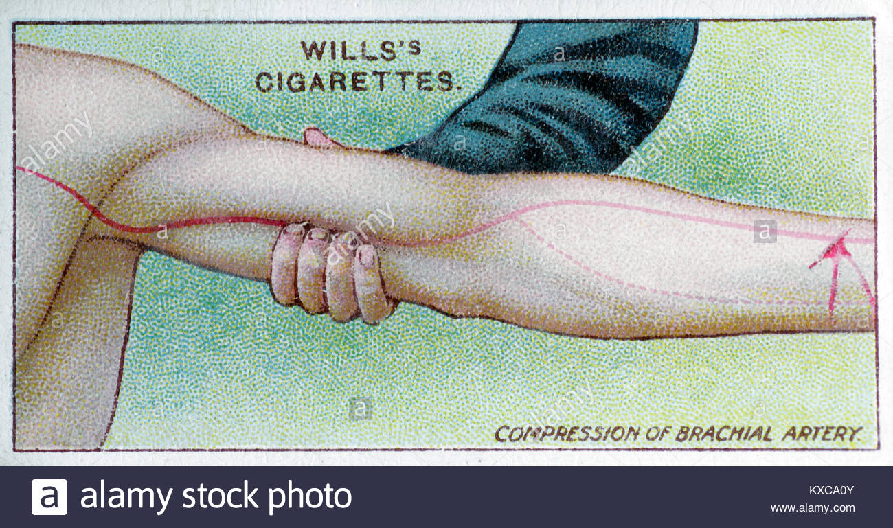 Vintage First Aid illustrations - Compression of Brachial artery - Stock Image