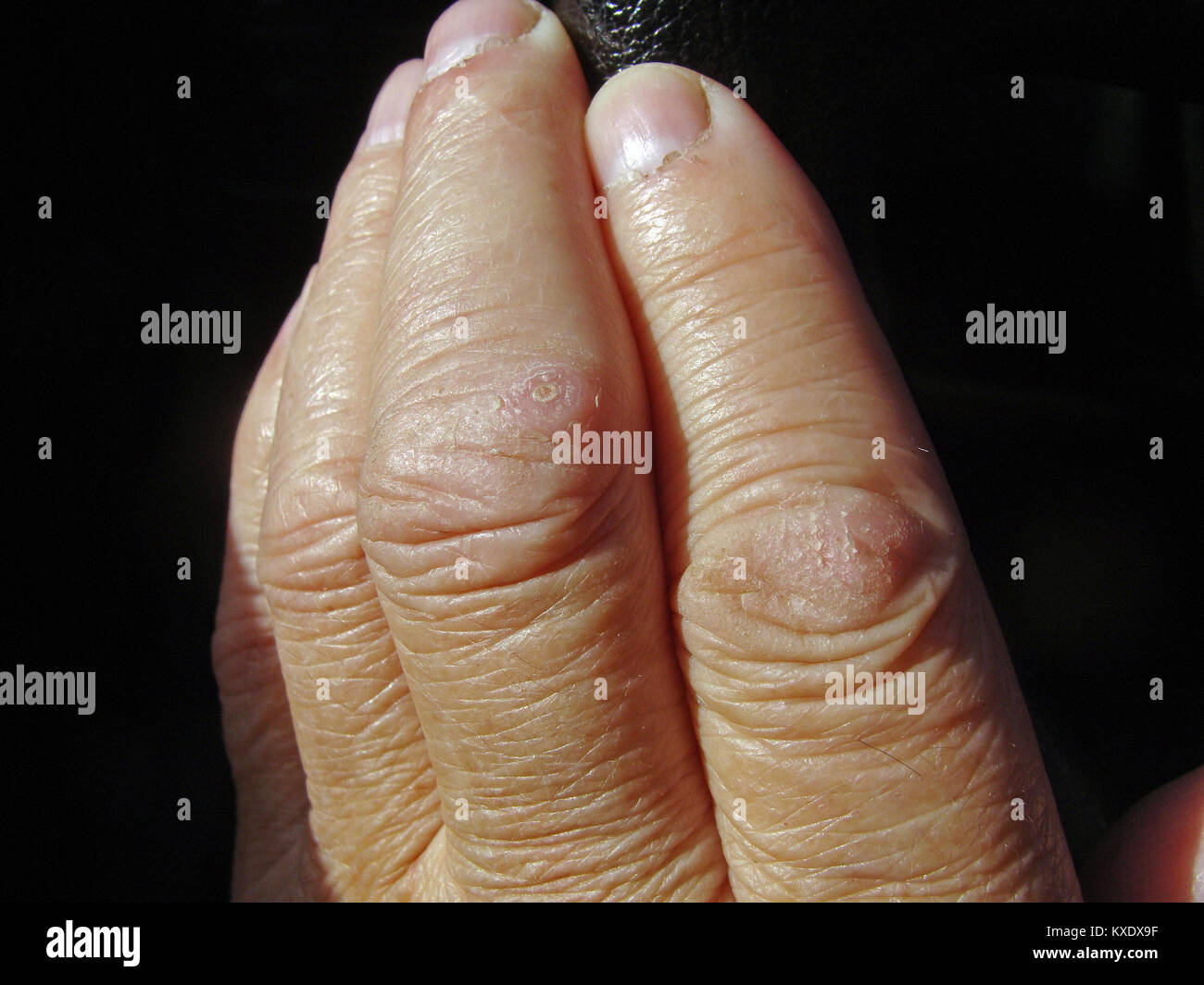 Too dry human skin cracked on finger joints close up Stock Photo ...