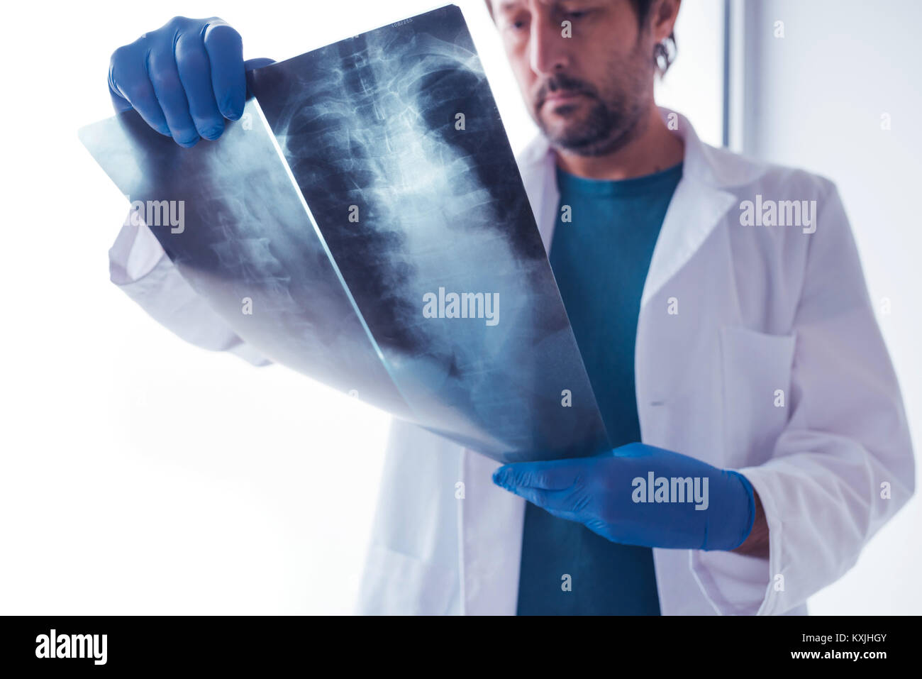 Doctor analyzing x-ray of the patient's spine in a medical clinic. Healthcare professional examining imaging - Stock Image