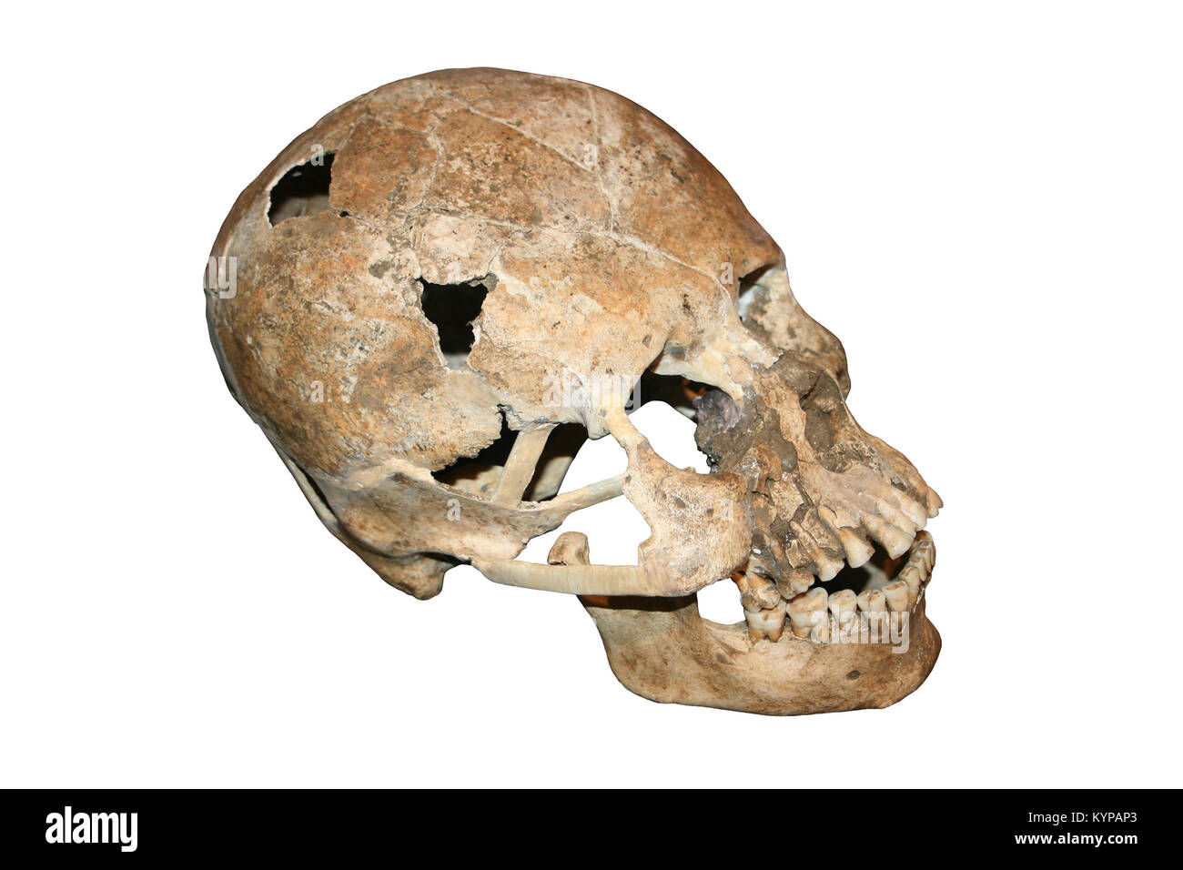 Elongated Skull From Costa Rica - Stock Image