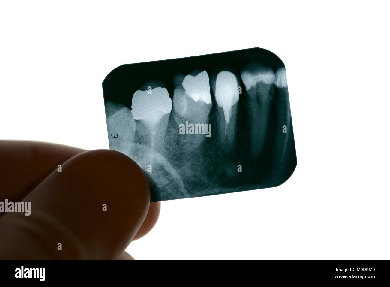 Dental X-ray Being Examined by a Dentist - Stock Image