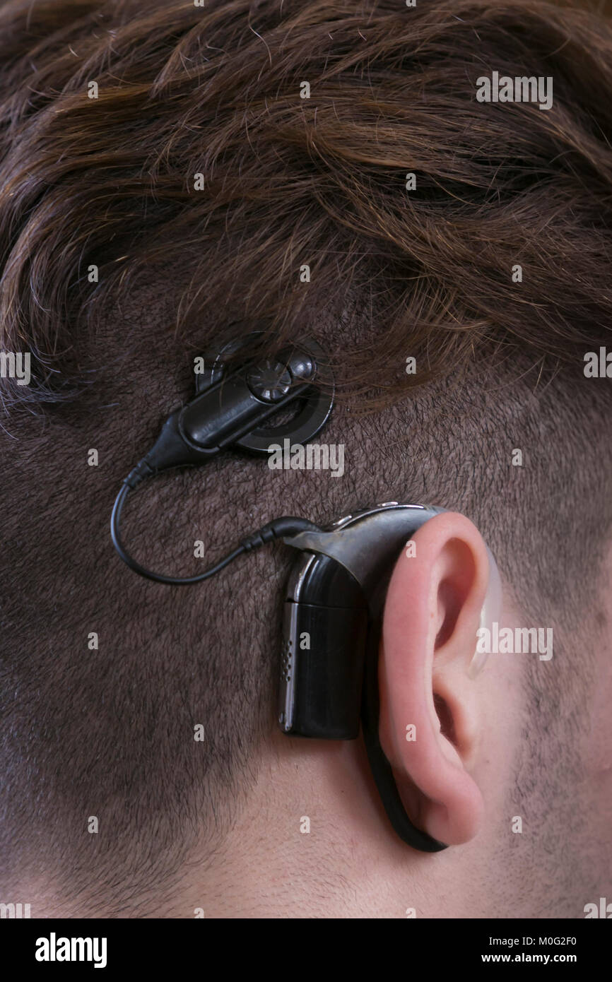 A young man is wearing a hearing implant - Stock Image