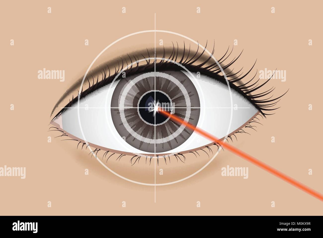 Of laser vision correction. - Stock Image
