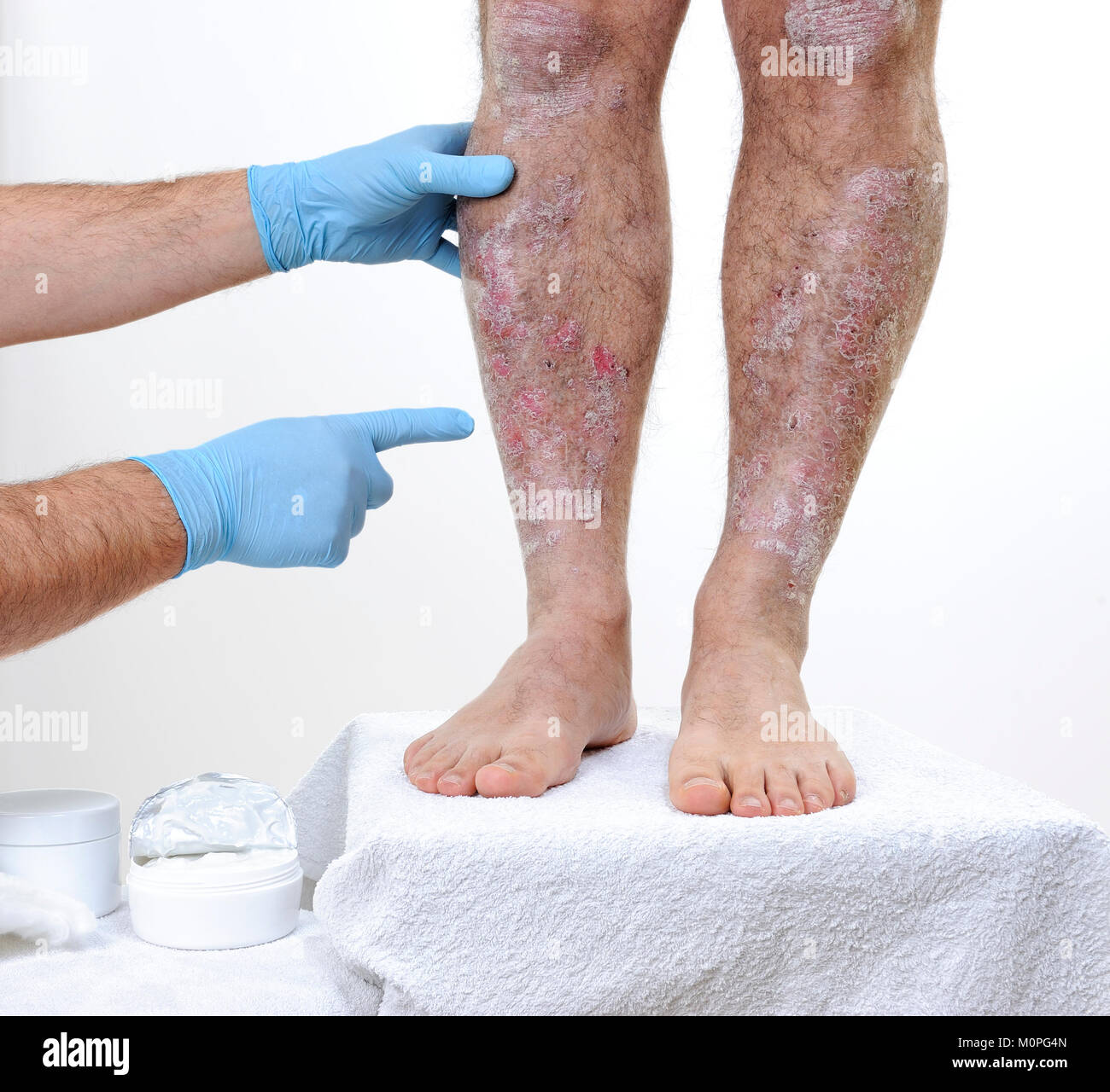 The dermatologist with his hands protected by gloves studies the inflammation in the legs of an adult man with psoriasis - Stock Image