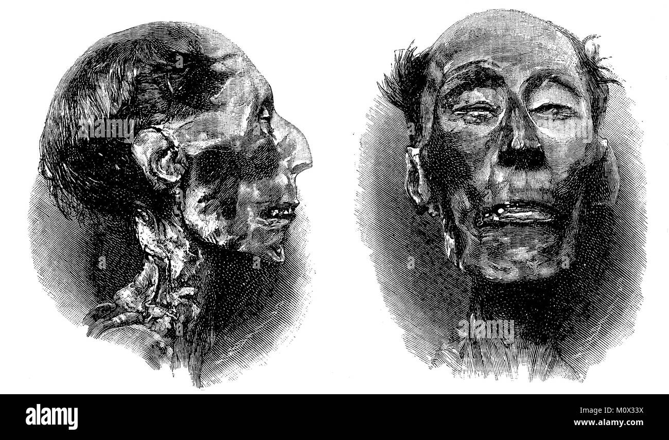The mummy of Ramses II, around 1303 BC Chr - June 27, 1213 BC, was the third ancient Egyptian king, Pharaoh, from - Stock Image